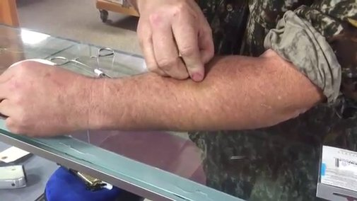 Fish Hook Removal... On Your Arm