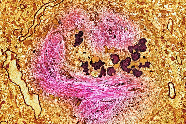 Unprecedented Alzheimer's drug slows disease by 80 percent