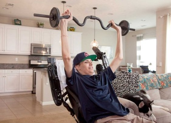 Experimental stem cell therapy helps paralyzed man regain use of arms and hands