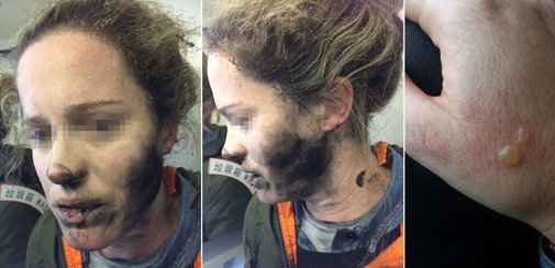 Headphone Batteries Explode on Flight, Burn Woman's Face and Hands