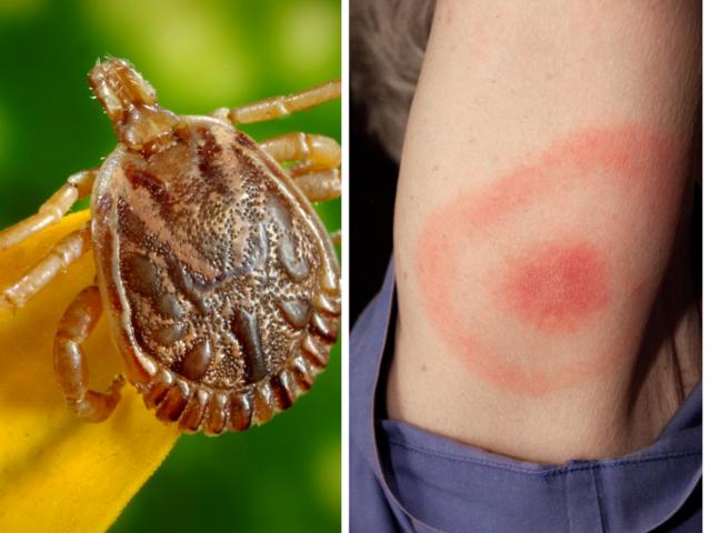 Powassan virus: Experts warn of deadly disease spread by ticks - KSHB.com 41 Action News