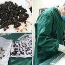 Doctors Remove Over 200 Stones from Woman's Body in a Single Operation | Oddity Central - Collecting Oddities