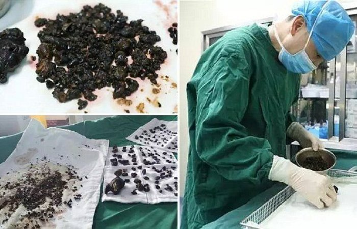 Doctors Remove Over 200 Stones from Woman's Body in a Single Operation   Oddity Central - Collecting Oddities