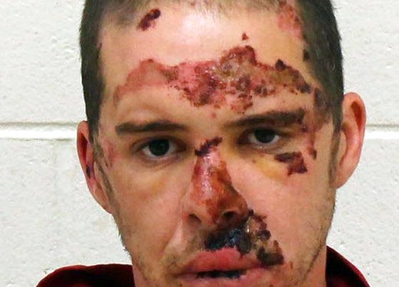 battered in mugshot after being hit by patrol car, won't do it again :)